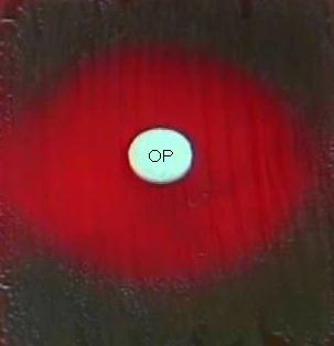 OPTOCHINA (dischi 5µg)